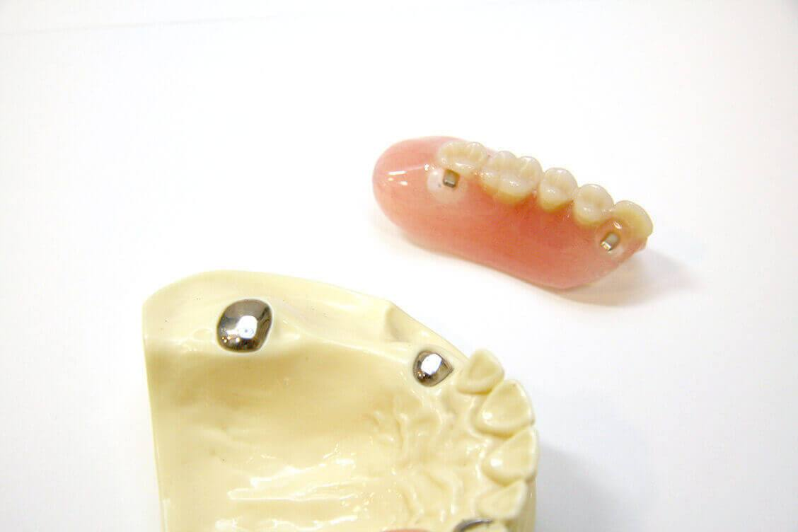磁力を利用した吸着力の高い入れ歯【マグネット・デンチャー】
