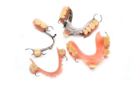 部分入れ歯の特徴