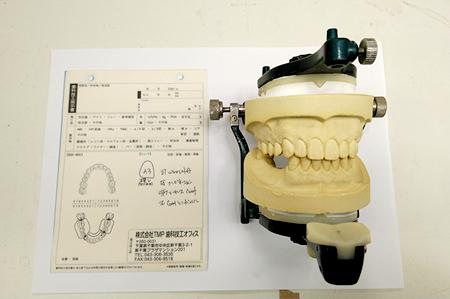 歯科技工指示書と咬合器