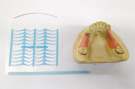 金具作成前の歯の模型