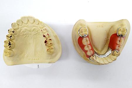噛み合わせ調整が終わった入れ歯