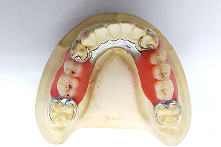 歯茎の部分をプラスチックに置き換えた入れ歯