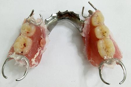 最後の磨き上げ前の入れ歯