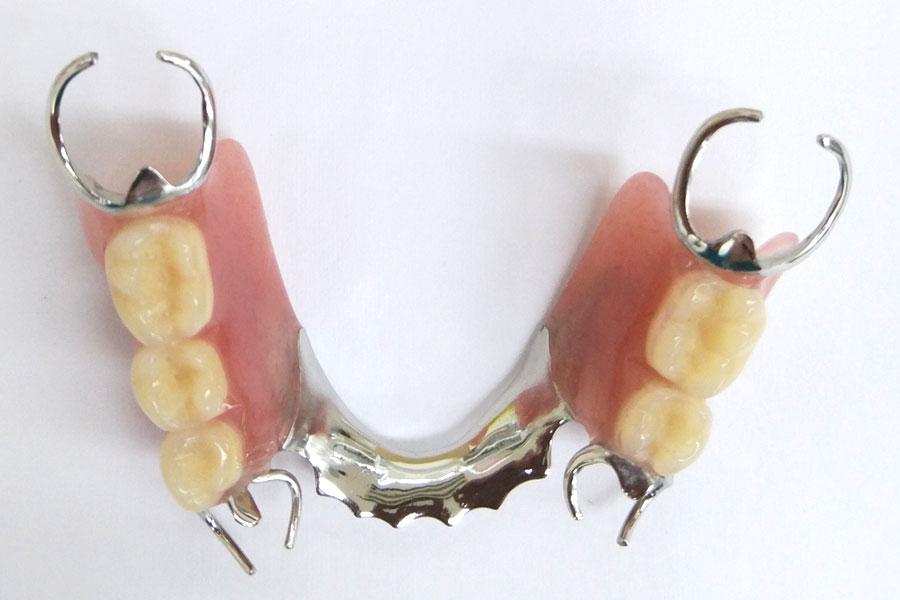 完成した入れ歯